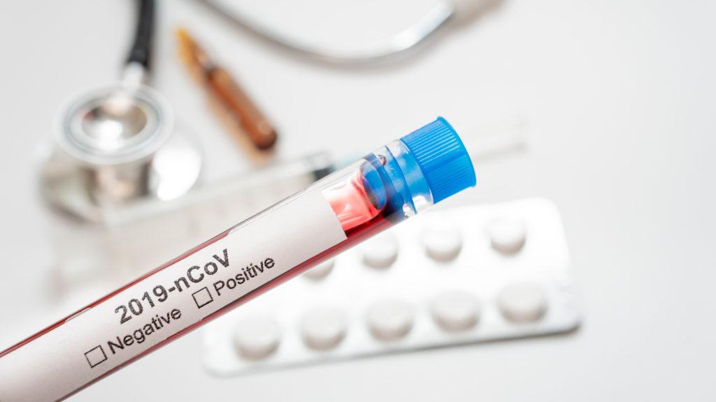 Lo que tienes que saber sobre el coronavirus